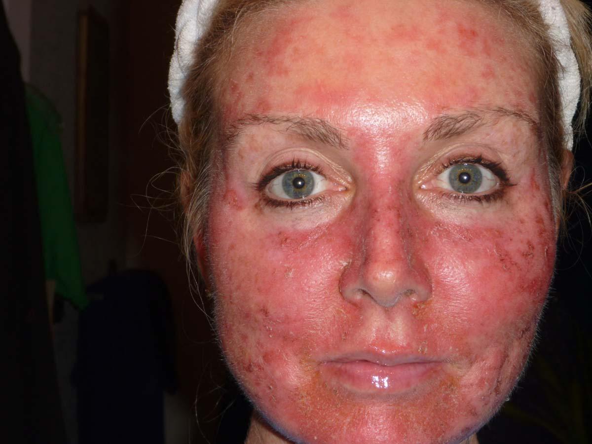Как выглядит заболевание у женщины