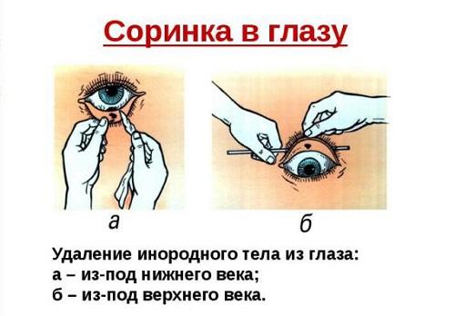 Очищение глаза