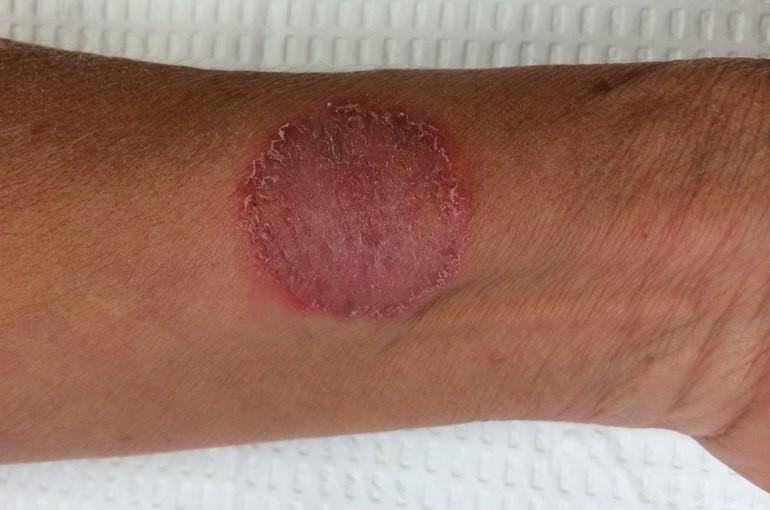 Пятно на коже не чешется не шелушится на ноге