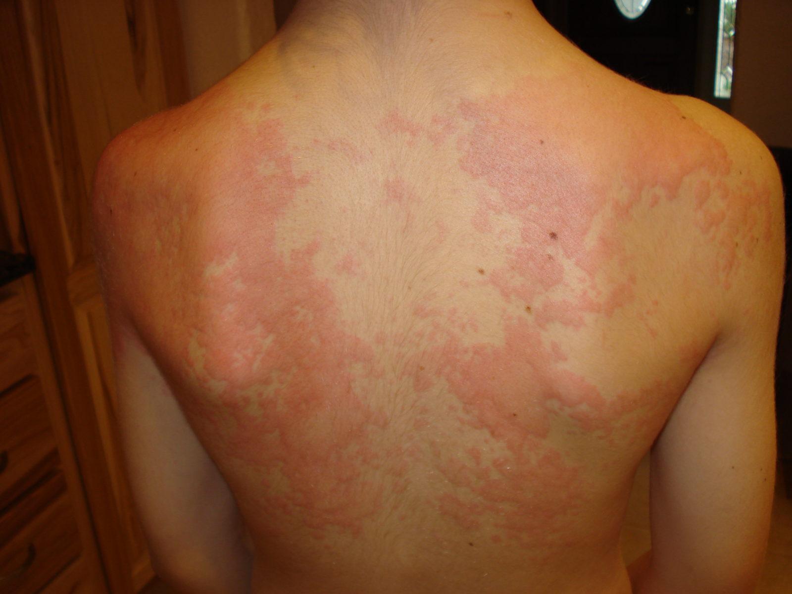 Пример высыпаний на спине у человека