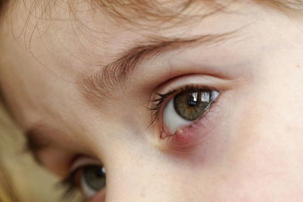 у ребнка опух глаз что делать