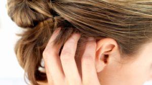 Зуд в волосяной части головы