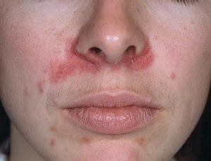 Пример дерматита на лице у человека