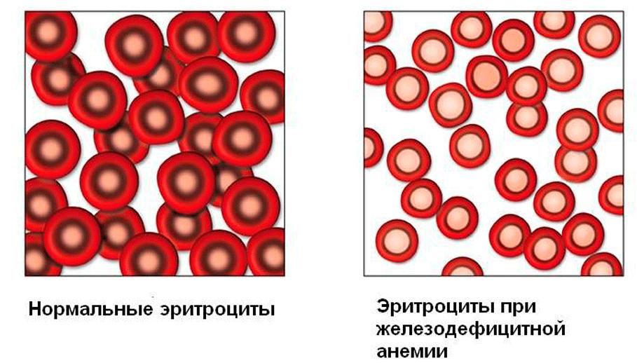 Метотрексат при псориазе - схема приема, побочные свойства