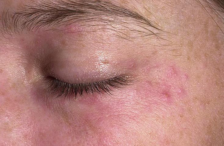 Аллергический тип