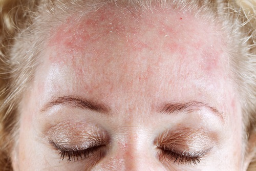Аллергия на лбу