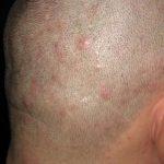 Зуд кожи головы и шеи причины лечение