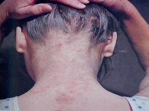 дерматоз
