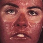 Как выглядит аллергия на солнце у детей на руках