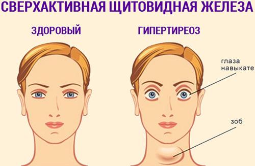 Гипертиреоз