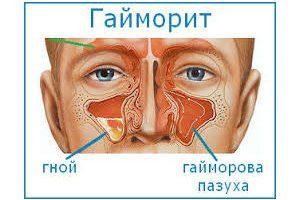 Вазомоторный ринит что это симптомы