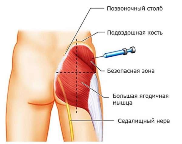 глюконат кальция в гинекологии внутривенно