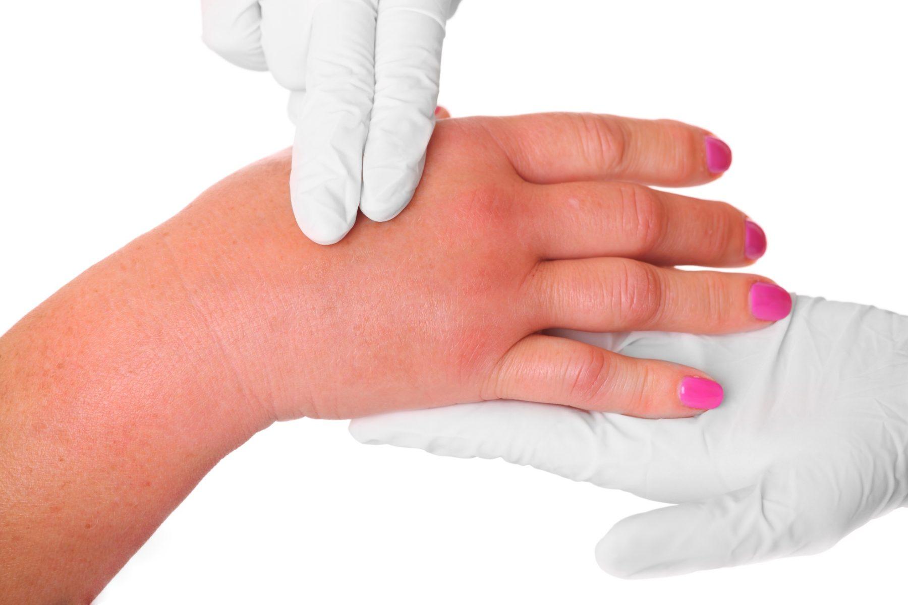 Прощупывание руки
