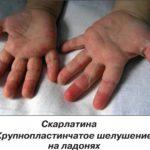Сыпь на ладонях и ступнях ребенка