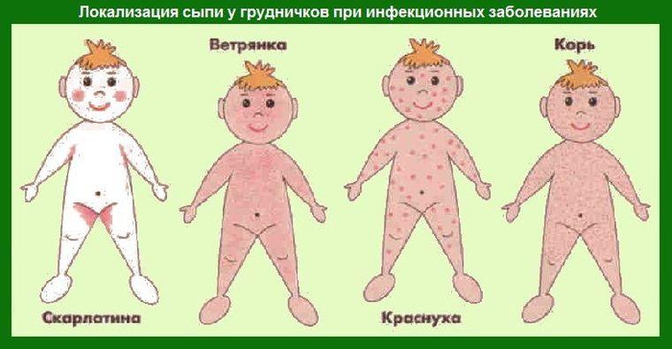 Сыпь на животе у ребенка без зуда