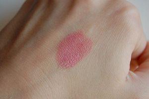 Розовые пятна на коже 6