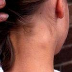 Воспаленный лимфоузел на шее