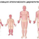 Розовые пятна на коже 60