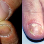 грибок на пальцах