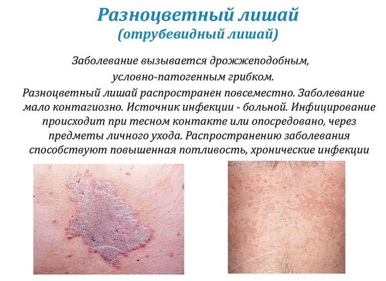 Розовые пятна на коже 18