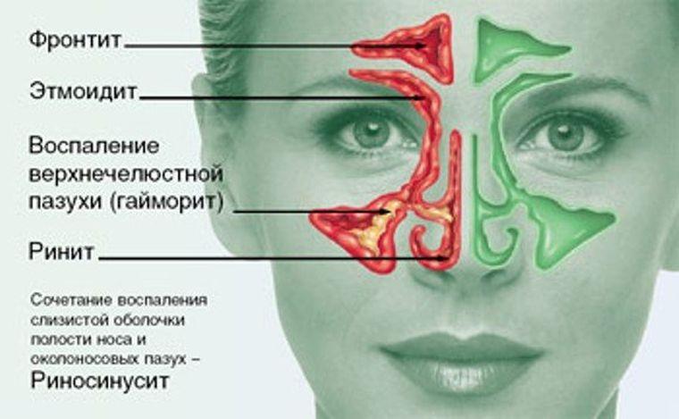 где локализуются носовые заболевания