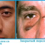 виды перелома носа