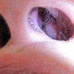 отек внутри носа