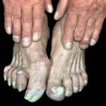 руброфития на кистях и ногах