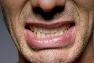 Жжение во рту и на языке: причины какой болезни? Горит язык: причины и лечение