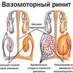 что такое вазомоторный ринит