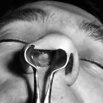 состояние носа при сикозе