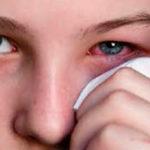 глазное воспаление
