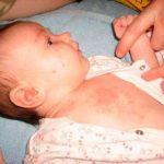 реакция на сливочное масло у малыша